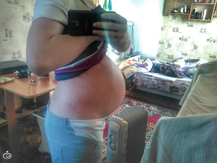 Из за чего тянет низ живота при беременности при ходьбе