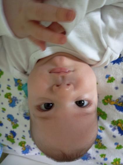 Синяя носогубная складка у ребенка 62