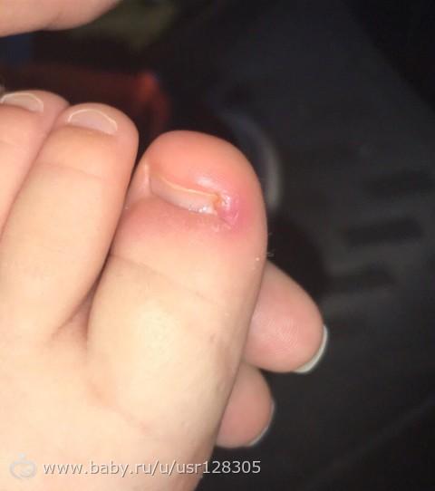 Дикое мясо на пальце: лечение, фото на пальце ноги и руки