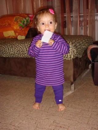 ребенок в 2 года начал косолапить